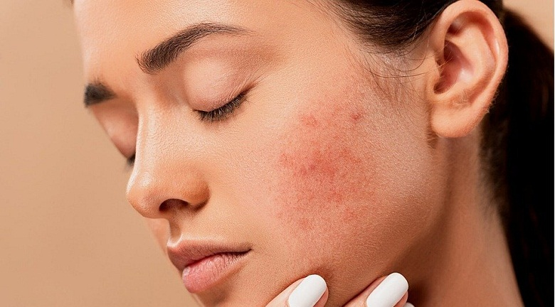 What is Skin Hyperpigmentation? Its Causes and Various Treatments